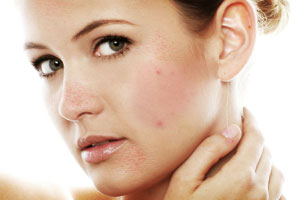 Tips to cure Face Pimples