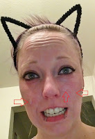 cat ears cute tca peel burn skin red funny