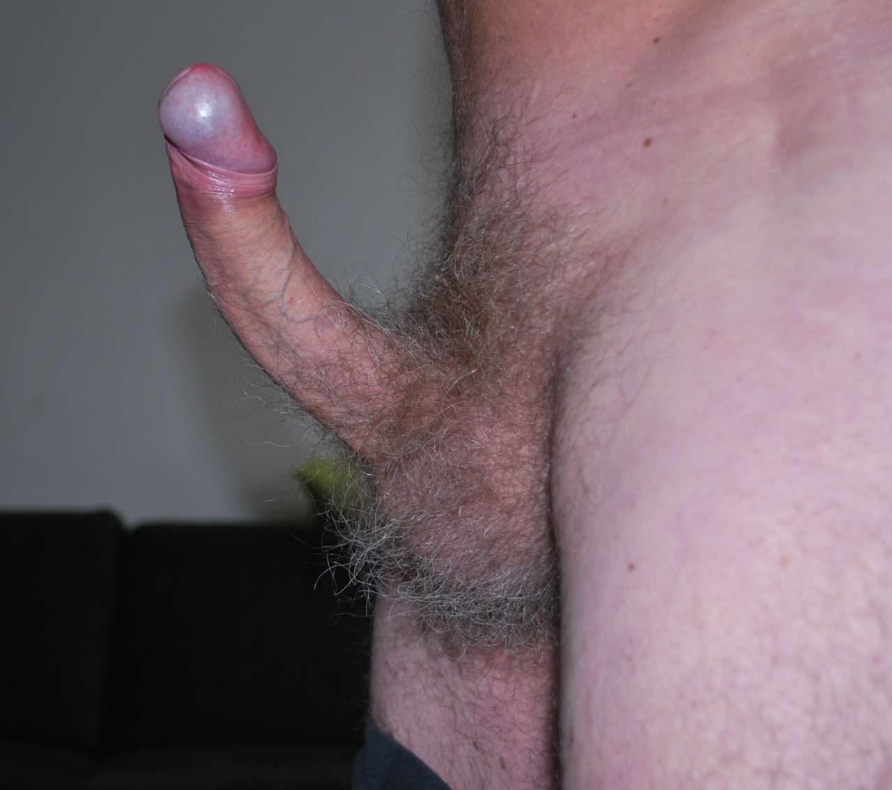 hairy balls: