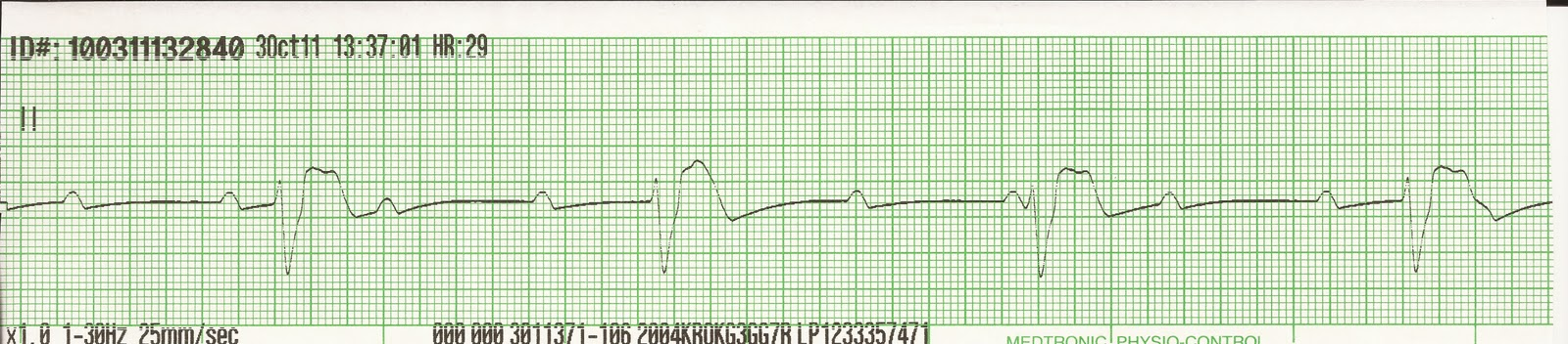 ekg rhythm strips of heart block into