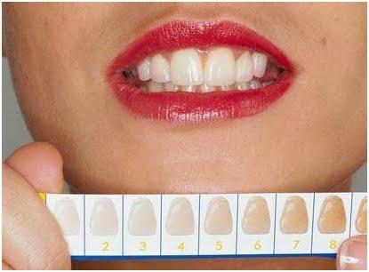 Equilibrium Odontologia Quais As Formas De Se Clarear Os Dentes