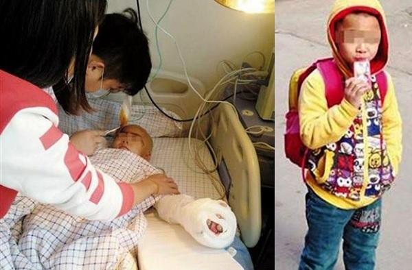 Wanita potong kemaluan, jari seorang kanak-kanak kerana buat bising