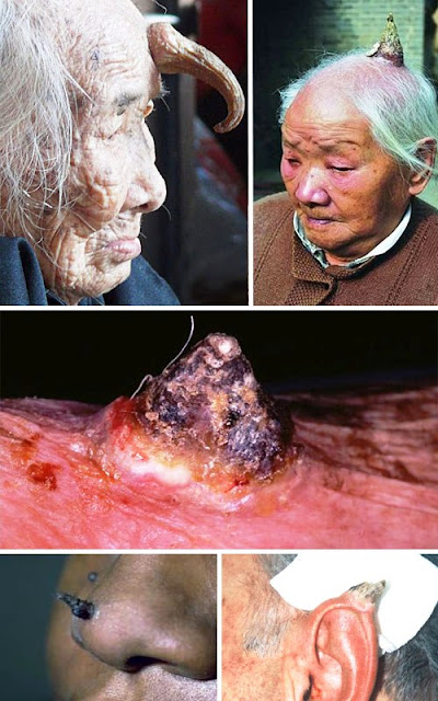 most horrible weirdest strangest diseases human horns Cornu Cutaneum Cutaneous horns