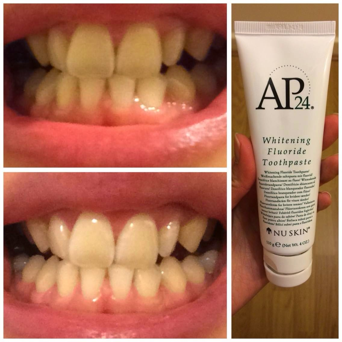 Tooth whitening paste: reviews 1