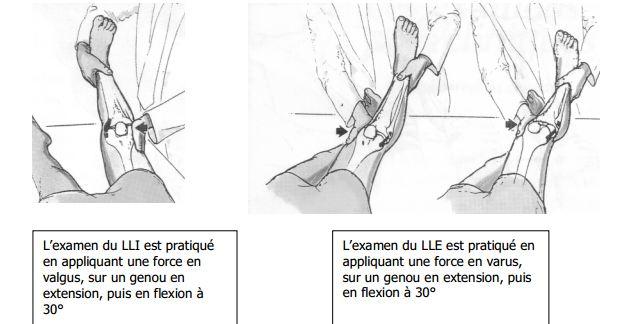 Douleur interieur genou course a pied 100 images mal for Douleur sur le cote exterieur du genou