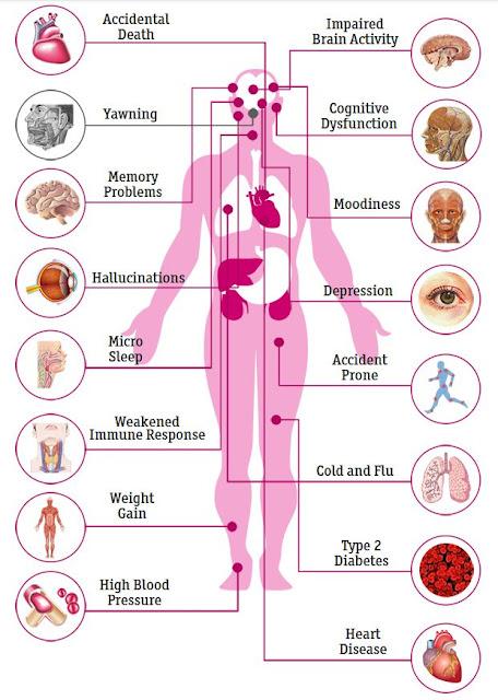 Lipsa de somn şi efectele negative asupra sănătăţii. Tabel afecţiuni
