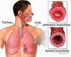 Jual Obat Tradisional Penyakit Asma