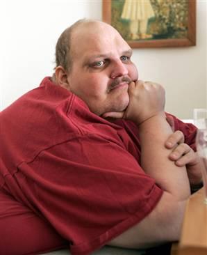 ожирение 2 степени лечение