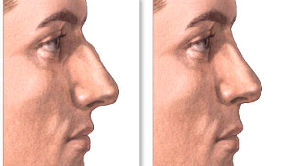 Nose Surgery Rhinoplasty India Kolkata. Best results by Dr Srinjoy Saha