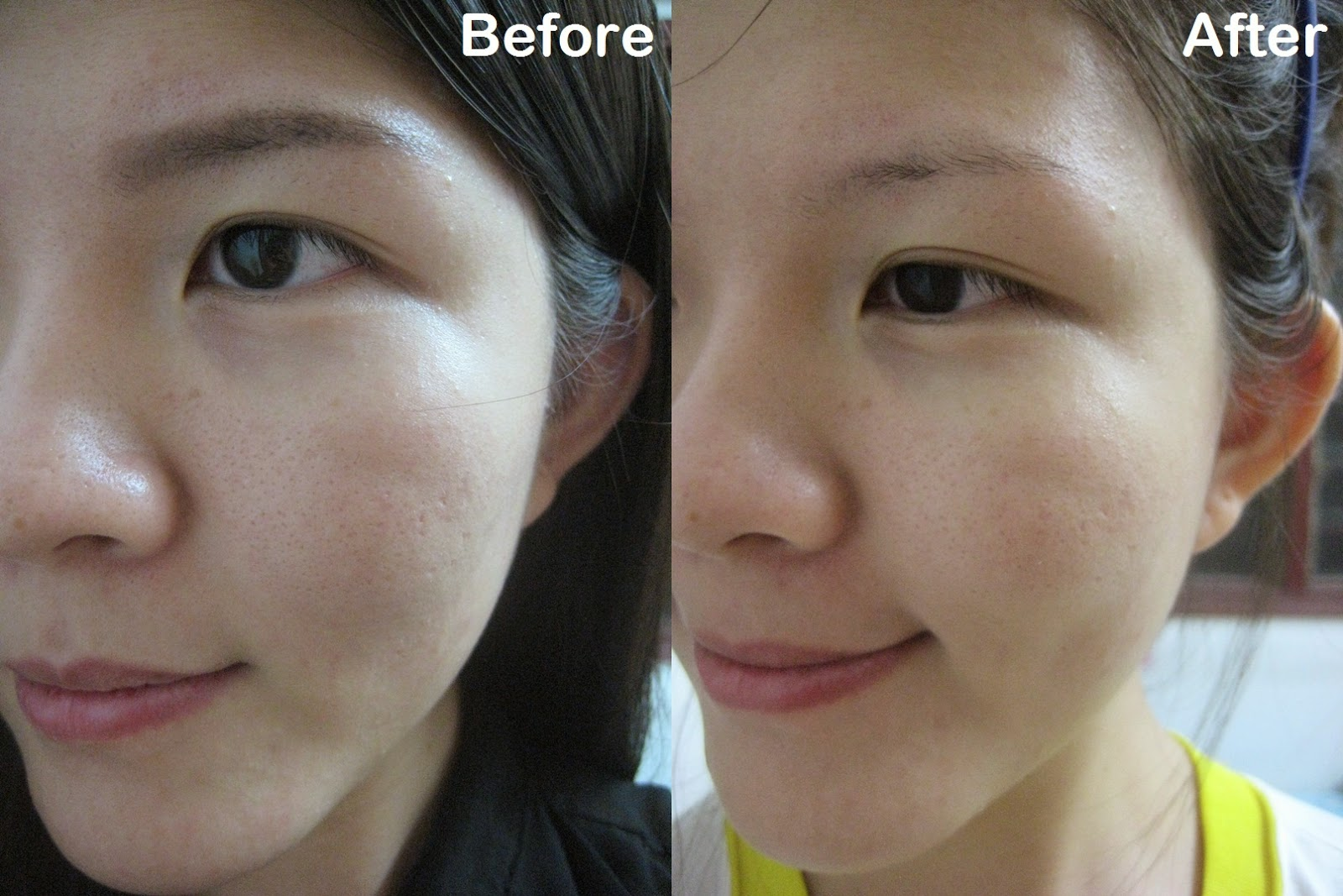 skin toner before and after