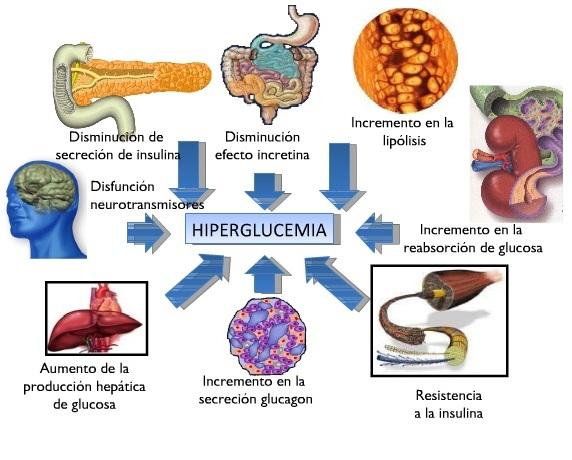 Fisiopatologia de la Diabetes Mellitus tipo 2 | Se dice Médico