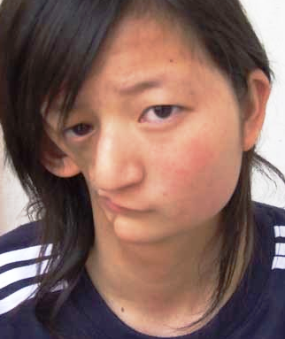 most horrible weirdest strangest diseases Half Face Syndrome Min Xiao