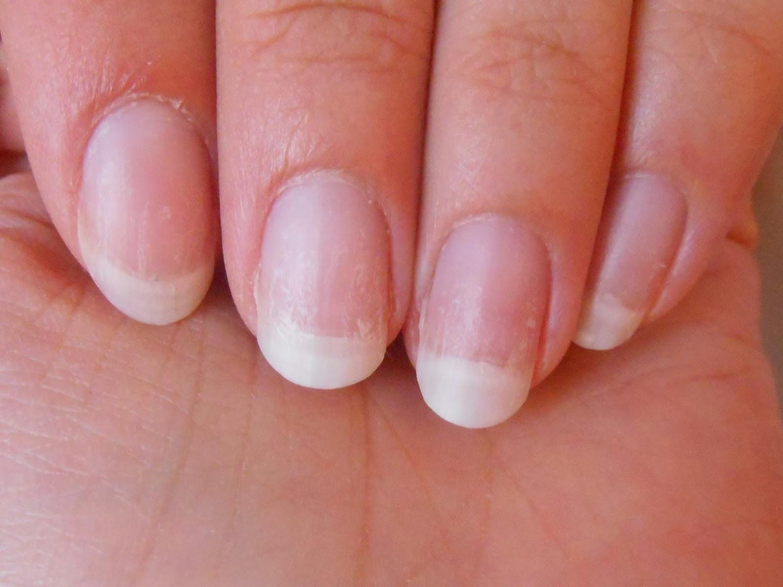 Les microorganismes végétaux des ongles sur les pieds les symptômes