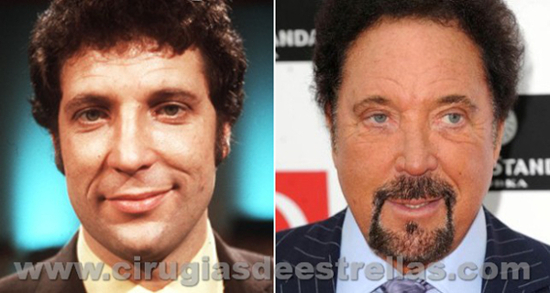 Tom Jones antes y después