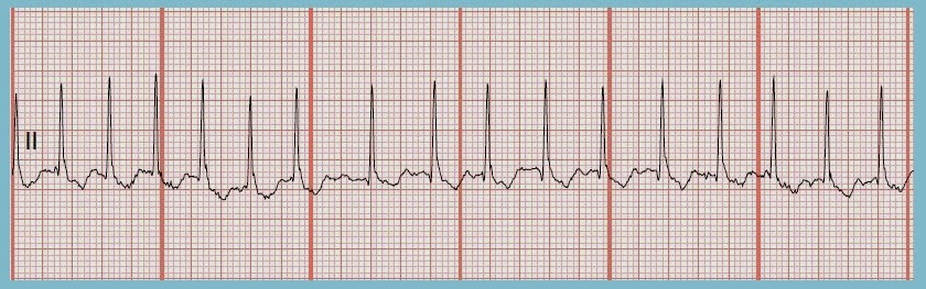 Atrial fibrillation strip