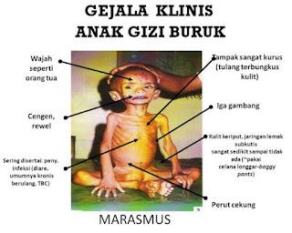 MASALAH GIZI BURUK