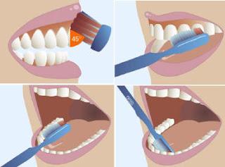 tecnica cepillado dental correcto