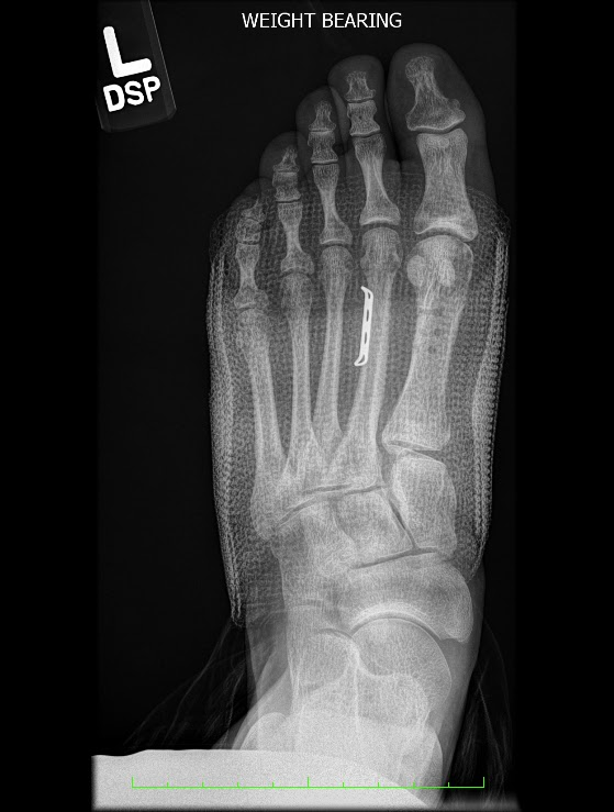 Alternative Bunion Surgery 10 Weeks Post Op New X Rays And New Toe