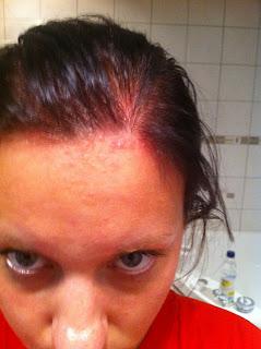 hårbotten kliar tappar hår