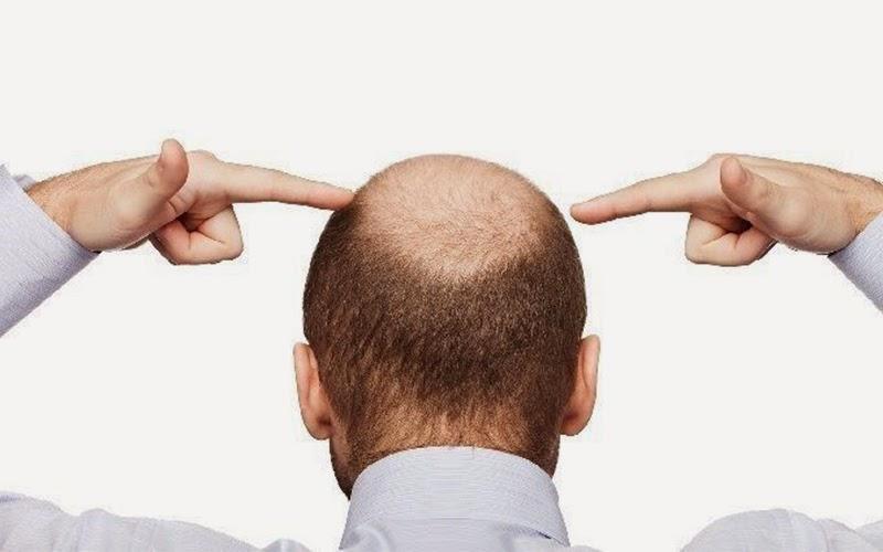 Why We Need Hair Transplant