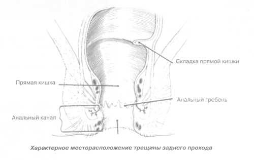 Послеоперационный период анальная трещина