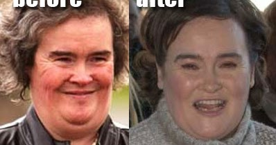 Susan Boyle Plastic Surgery Before And After Facelift And Chin Implants