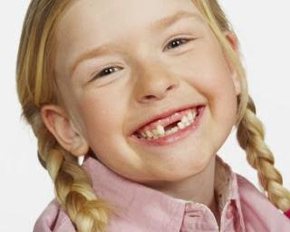 Cara Mudah Merawat Gigi Pada Anak Balita