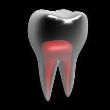 Está com dor de dente?