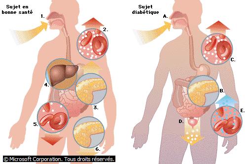 Pathogenèse du diabète sucré