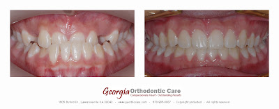 Orthodontic treatment of dental crossbite