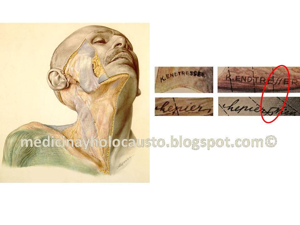 Los libros de Anatomía (I). El Atlas de Anatomía de Pernkpof.