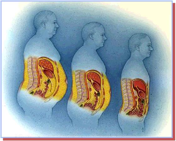 Define Visceral Fat 117