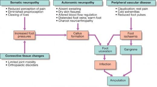 development of diabetic ulcer and diabetic gangrene