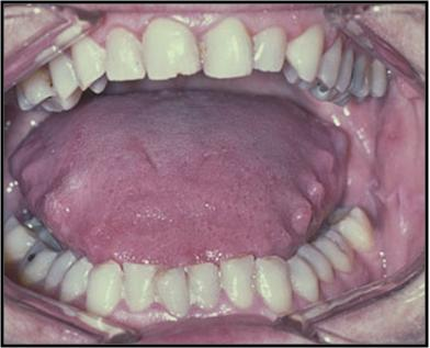 Macroglossia - Pictures, Causes, Symptoms, Treatment