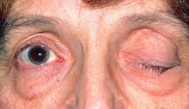 Blepharospasm: Causes, Symptoms And Treatment