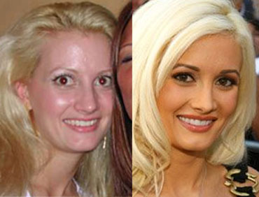 Eternal Hollywood Celebrities Before And After Plastic Surgery