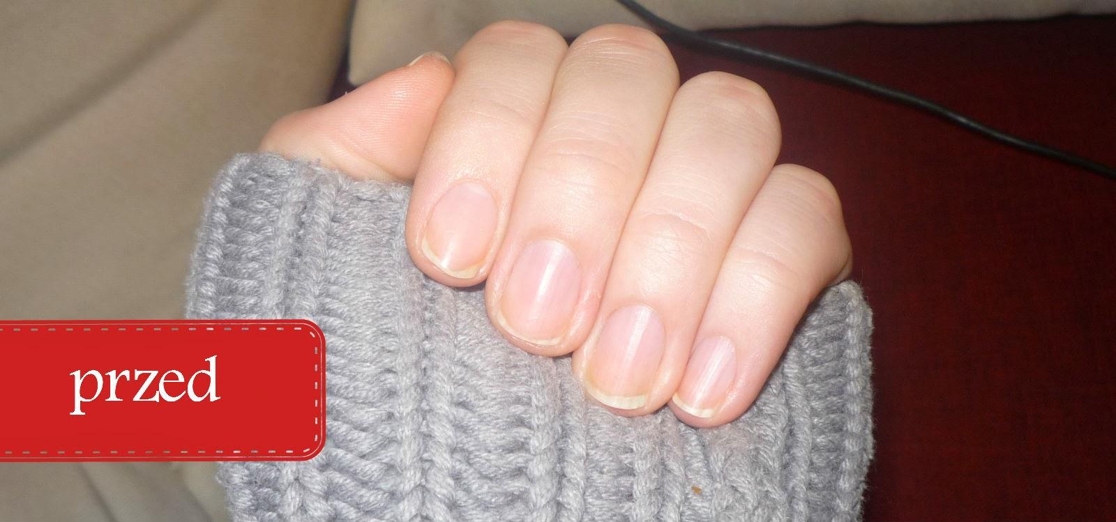 odżywka do paznokci eveline formaldehyd