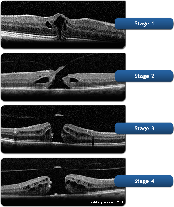 Macular Hole Stages