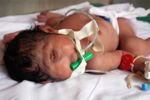14 Manusia dengan Bentuk Tubuh Teraneh di Dunia: Bayi Bermata Satu