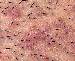 in bikini area hairs Severe ingrown
