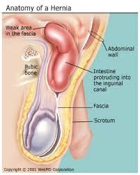 obat tradisional hernia