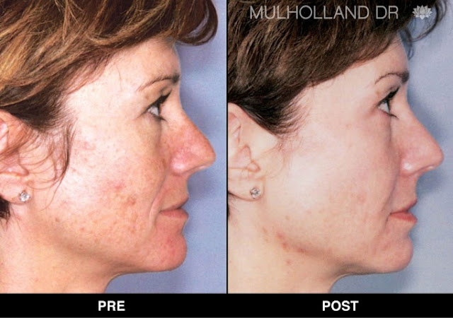 Before and after fotofacial in Toronto