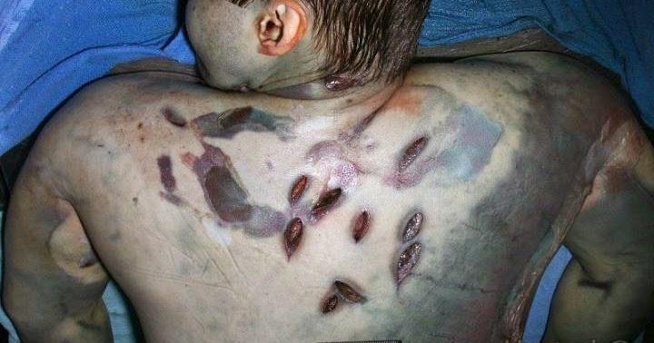 Travis Alexander Crime Scene Autopsy Photos of Death