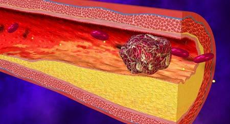 Cara Mencegah Terjadinya Pembekuan Darah