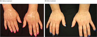 Arthritis Drug Restores Skin Color In Vitiligo Patients