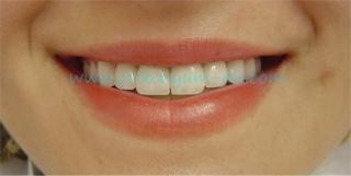 simetrik estetik beyaz diş