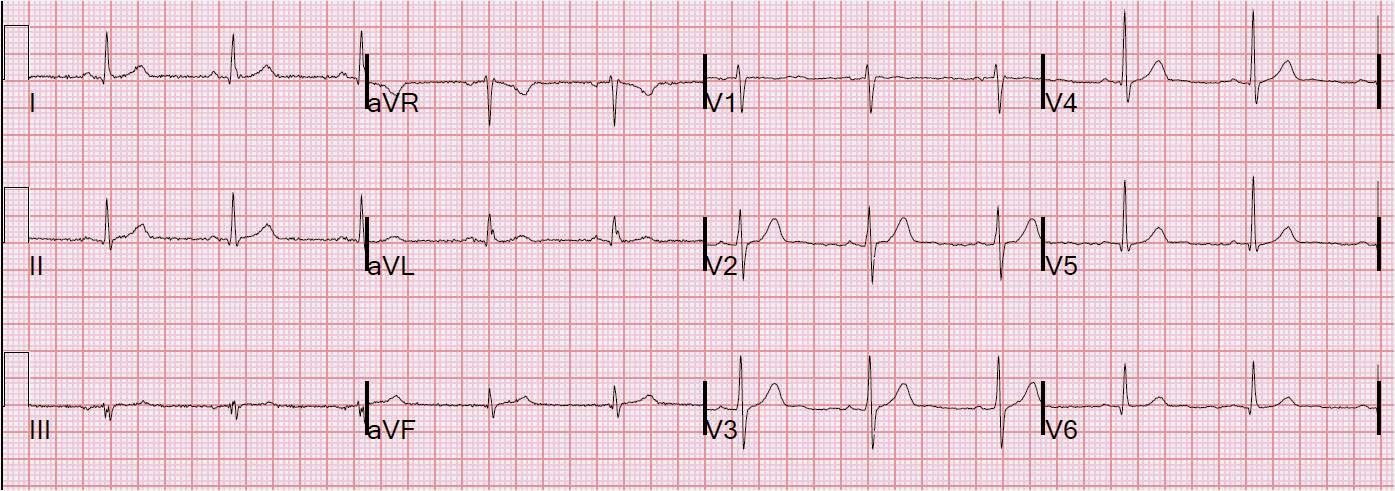 Dr. Smith's ECG Blog: Is it MI or pericarditis?