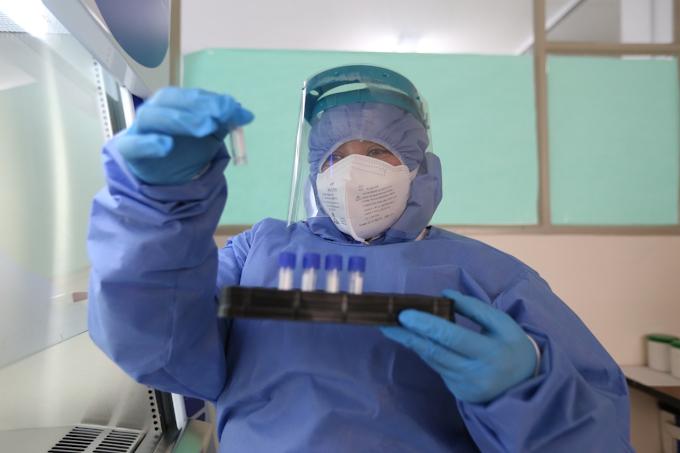 COVID-19: Boyacá confirma ochenta y siete nuevos casos positivos