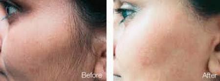 Как избавиться от нежелательных волос на лице