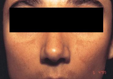 Eficaz la máscara para el blanqueamiento de la persona